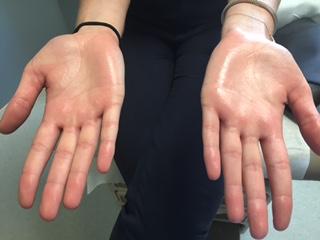 hyperhidrosis-sweaty-hands